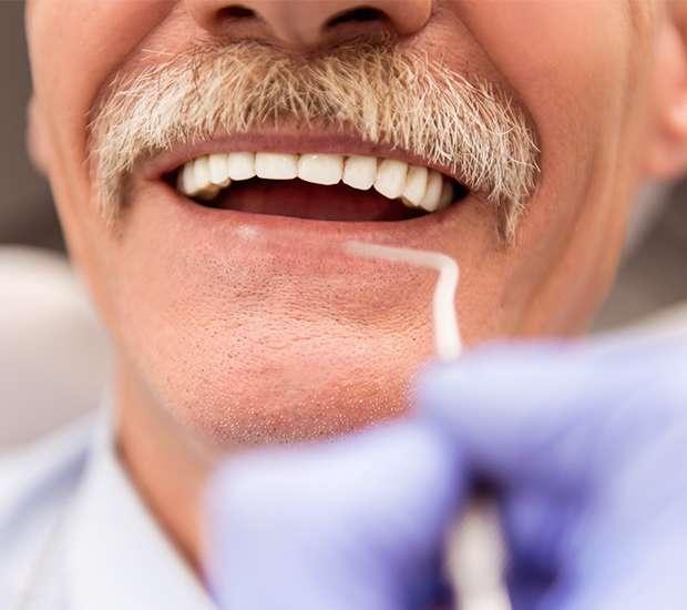 Manassas Adjusting to New Dentures