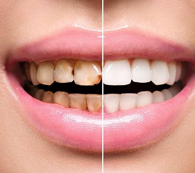 Manassas Dental Implant Restoration