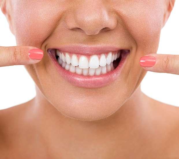 Manassas What Is Gum Contouring & Reshaping