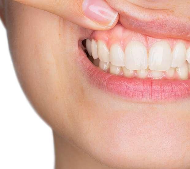 Manassas Gum Disease