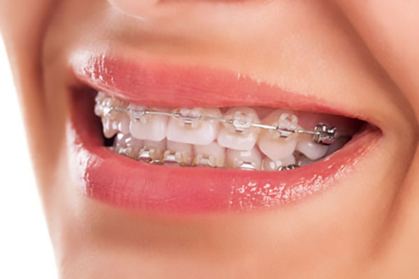 What Is A Lip Bumper In Orthodontics?