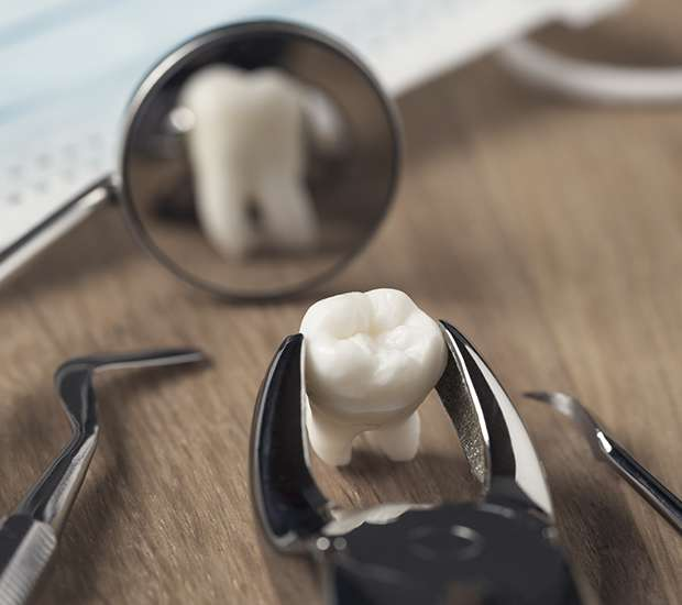 Manassas When Is a Tooth Extraction Necessary